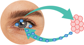 Chronic Dry Eye Syndrome - Inflammation and Irritation